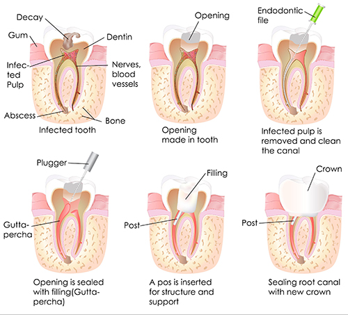 Placerville Root Canal